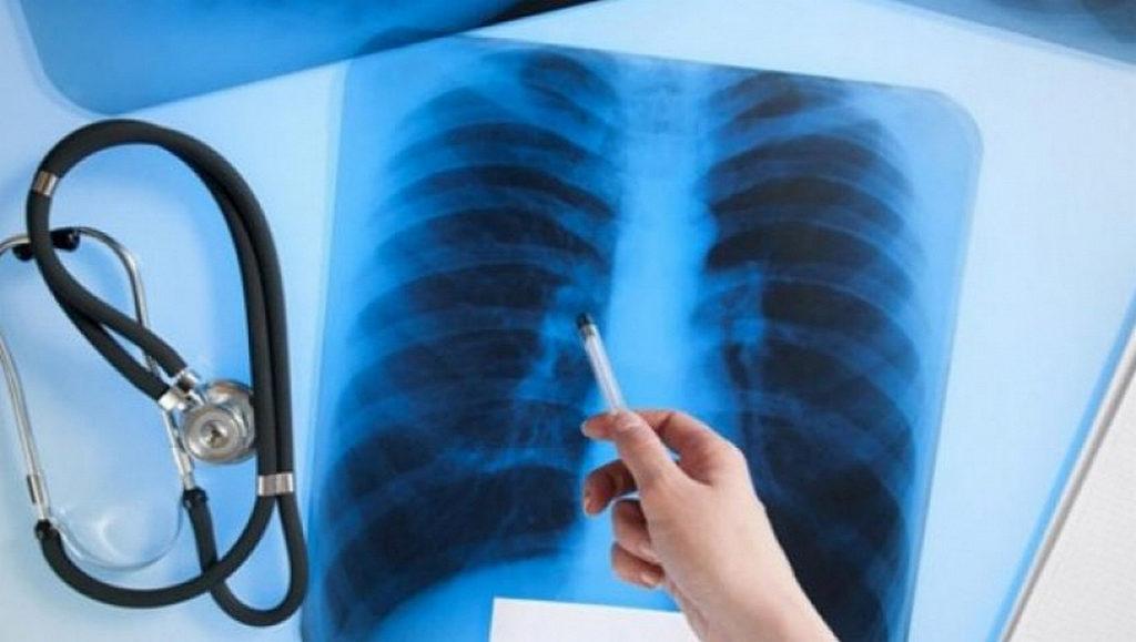 10 міфів про туберкульоз